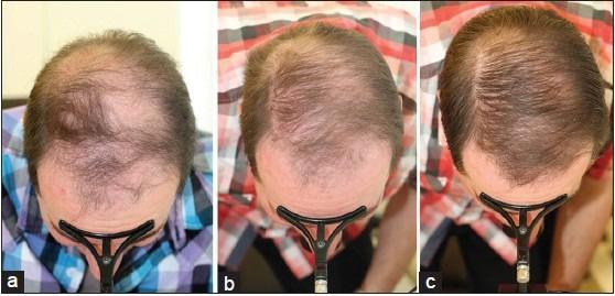 Maschera per rinforzo di capelli di capelli