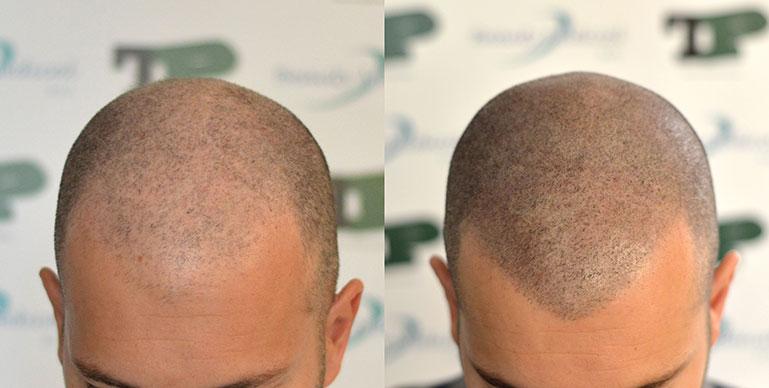 Tricopigmentazione prima e dopo - Milena Lardì