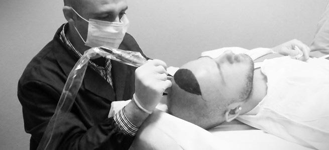 Vincenzo Coni della Dermatrico Repair durante una tricopigmentazione