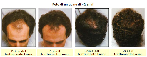 Comprare medicine per una ricostruzione di capelli keratin