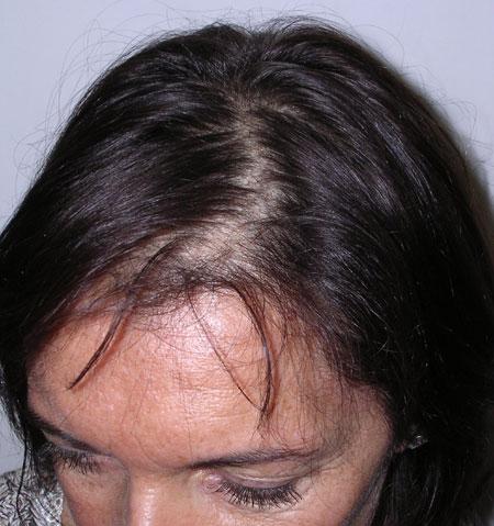 Alopecia barba rimedi naturali