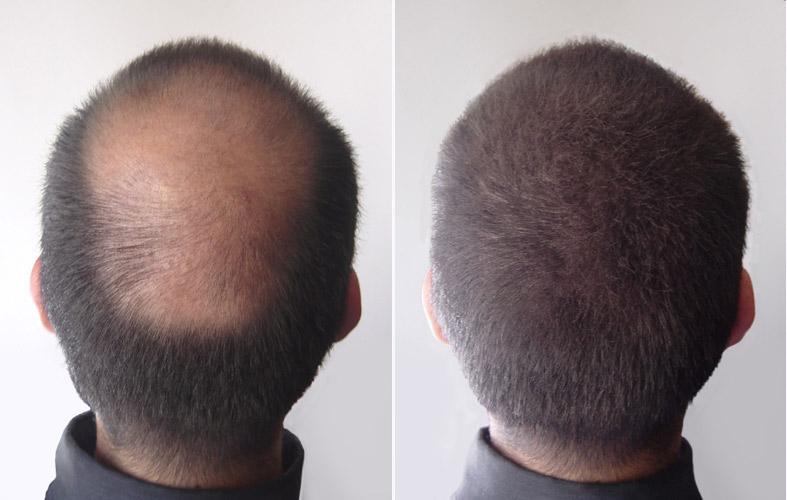 Le ricette nazionali che restaurano maschere di capelli