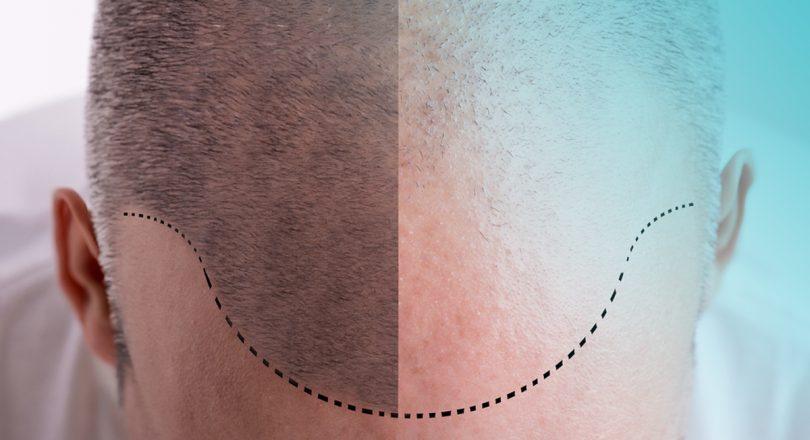 Come i capelli lunghi cadono dopo rimozione dei capelli del laser