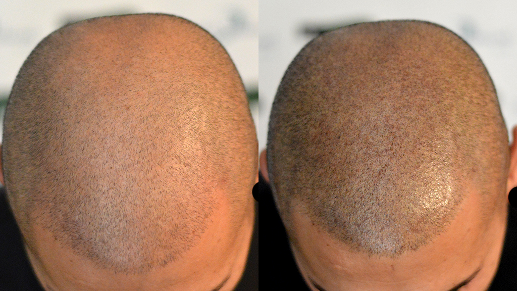 Maschere nazionali per crescita e rinforzo di capelli