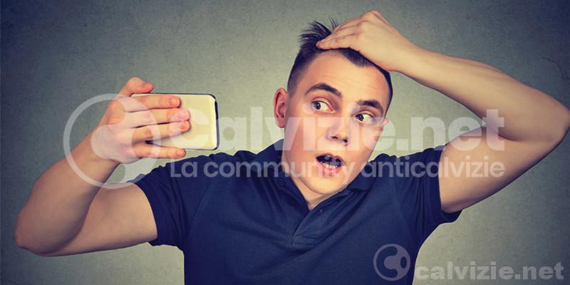 Caduta capelli estate